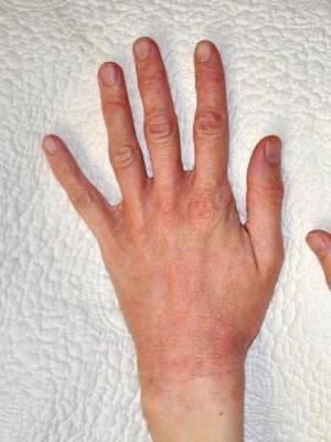 лучевой дерматит симптомы