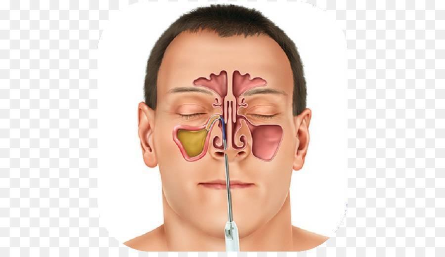 лечение носовых пазух