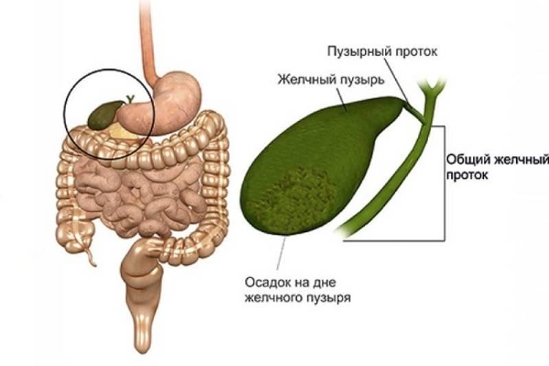 Заболевания желчного пузыря: симптомы и методы лечения. болит желчный пузырь: симптомы