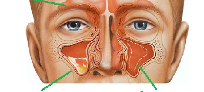 операция при гайморите как делают