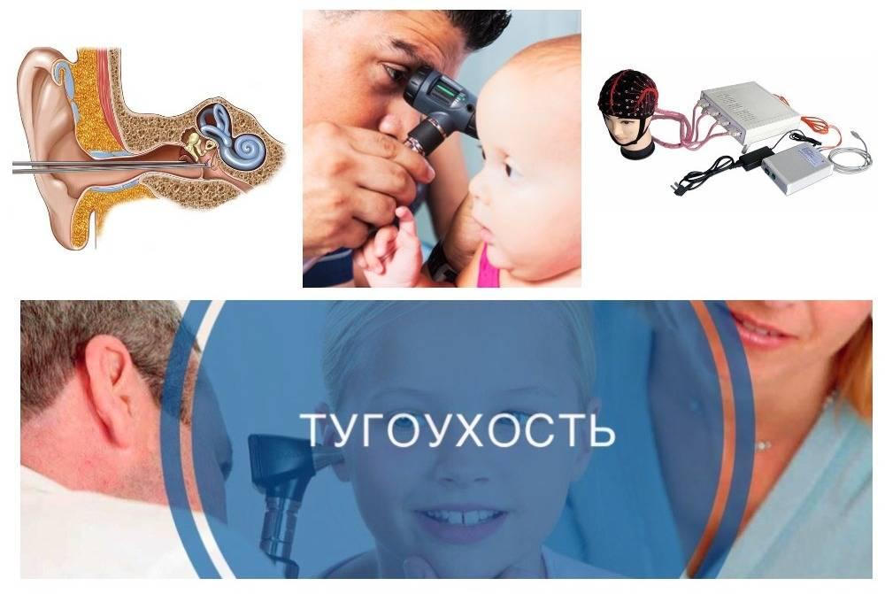 Нейросенсорная тугоухость: степени, лечение, причины, профилактика