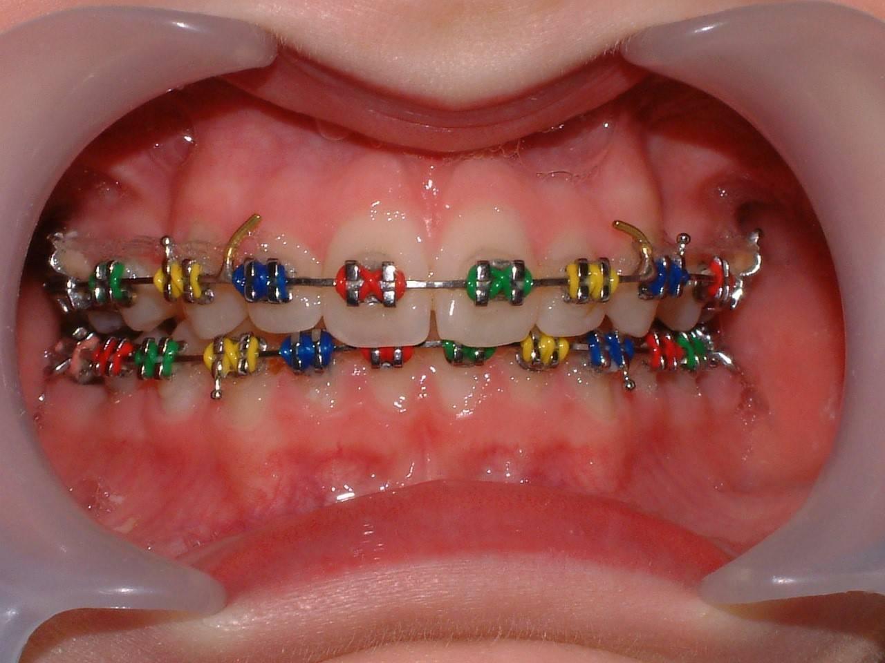 ортодонтия это