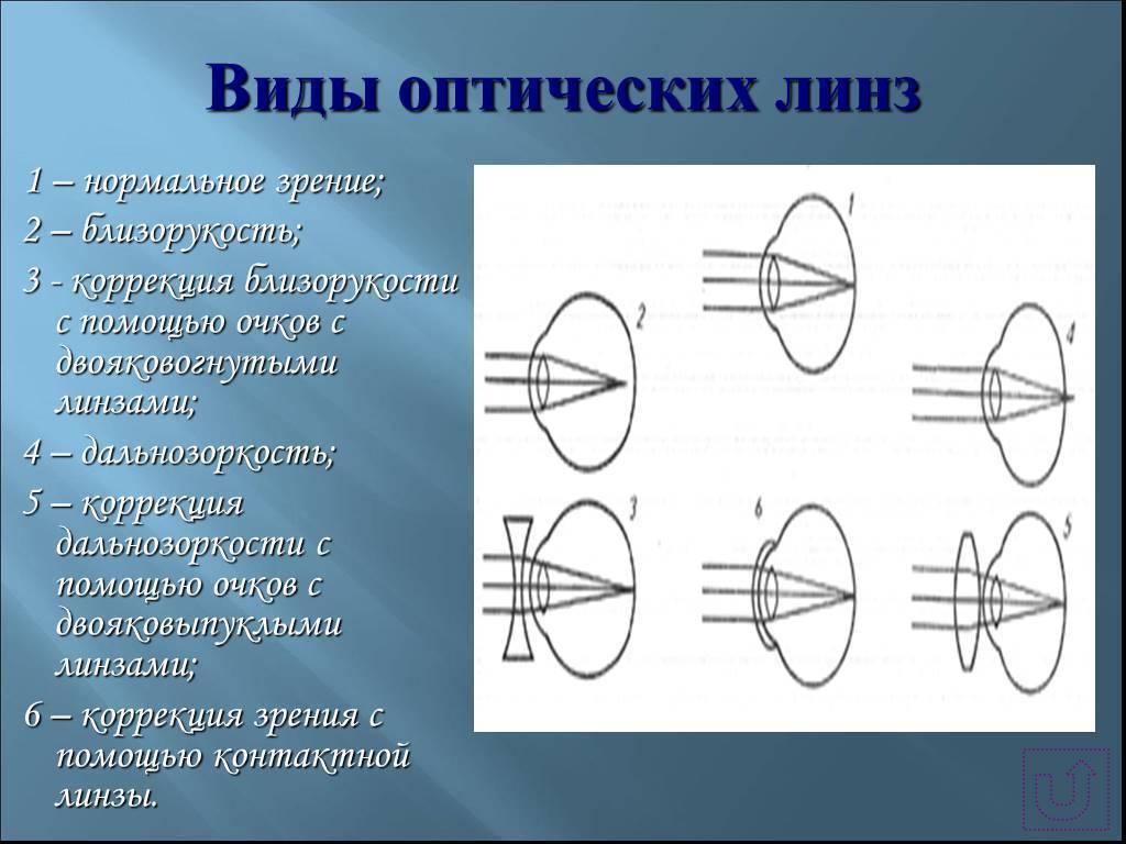 Подбор и применение контактных линз при дальнозоркости