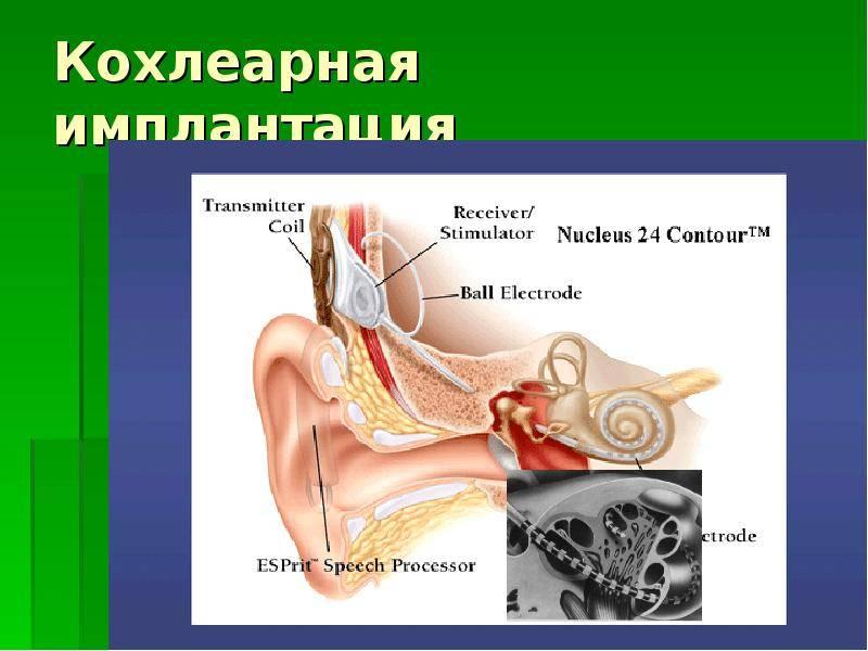 Лабиринтит (внутренний отит). причины, симптомы, признаки, диагностика и лечение патологии :: polismed.com