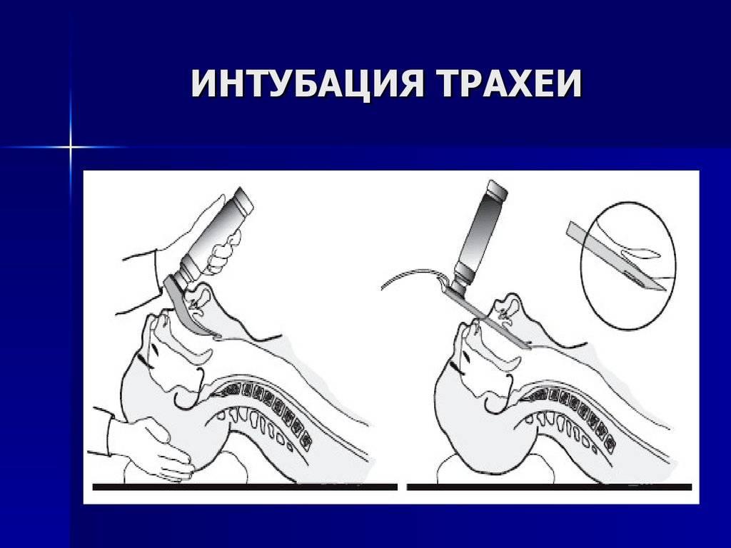 Интубация трахеи: суть и смысл процедуры, показания, как проходит - алгоритм и техника