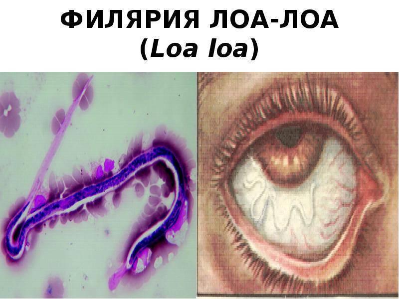 Филяриоз. способы заражения, симптомы, диагностика и лечение. :: polismed.com