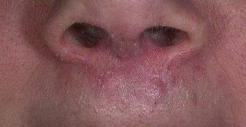 Стафилококк в носу: причины, симптомы и что делать