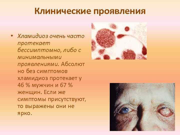 Хламидиоз. как он передается, симптомы хламидиоза, современная диагностика, эффективное лечение заболевания.