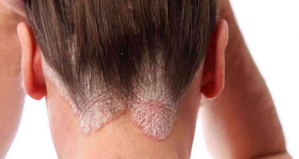 Как лечить дерматит в домашних условиях народными средствами