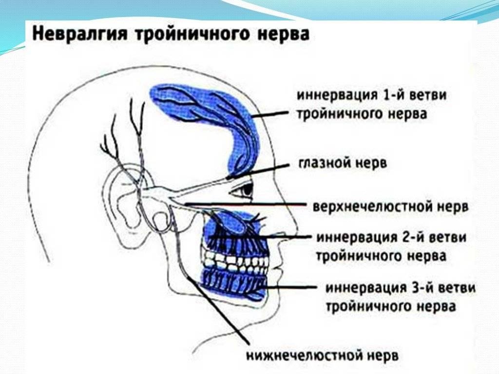 причины невралгии тройничного нерва