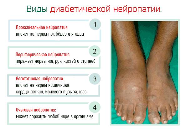 Диабетическая полинейропатия - симптомы и лечение