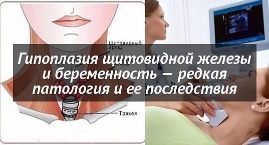 признаки гипоплазии щитовидной железы