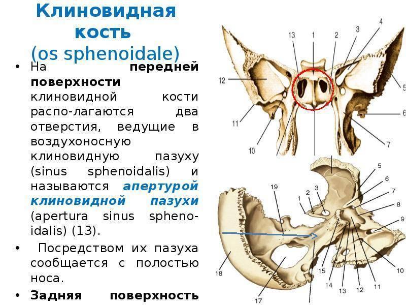Сфеноидит: причины, признаки, диагностика, как вылечить, профилактика