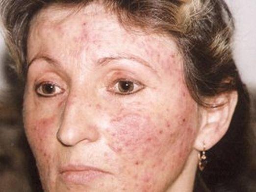 Подкожный клещ на лице: причины, симптомы и лечение