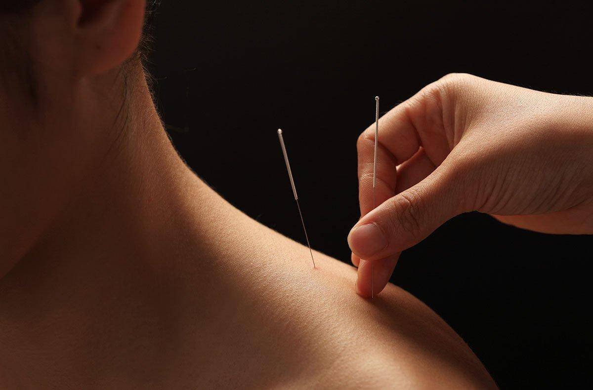 Лечение иглоукалыванием: для чего назначают «игольную» терапию