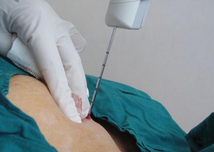 Пункция молочной железы: показания, как проходит, виды, результаты