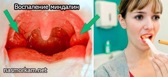 заложенность уха при насморке без боли