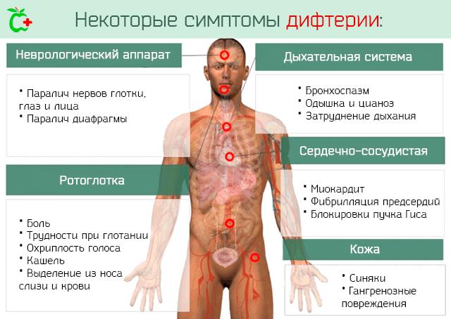 дифтерия признаки заболевания