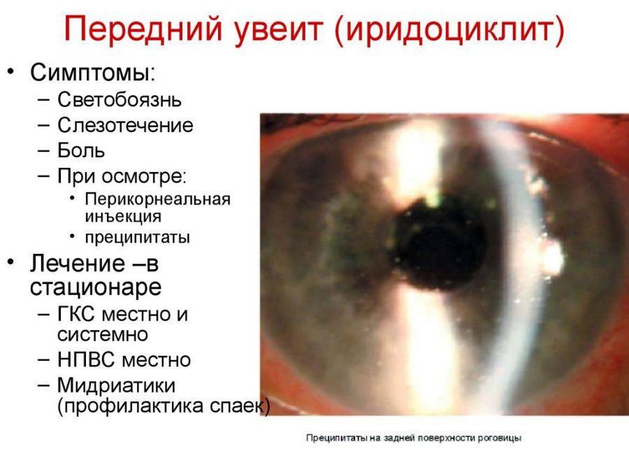 Воспаление радужной оболочки глаза: причины, симптомы, диагностика, лечение и профилактика.