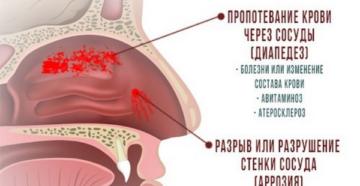 От чего идет кровь из носа у беременной причины
