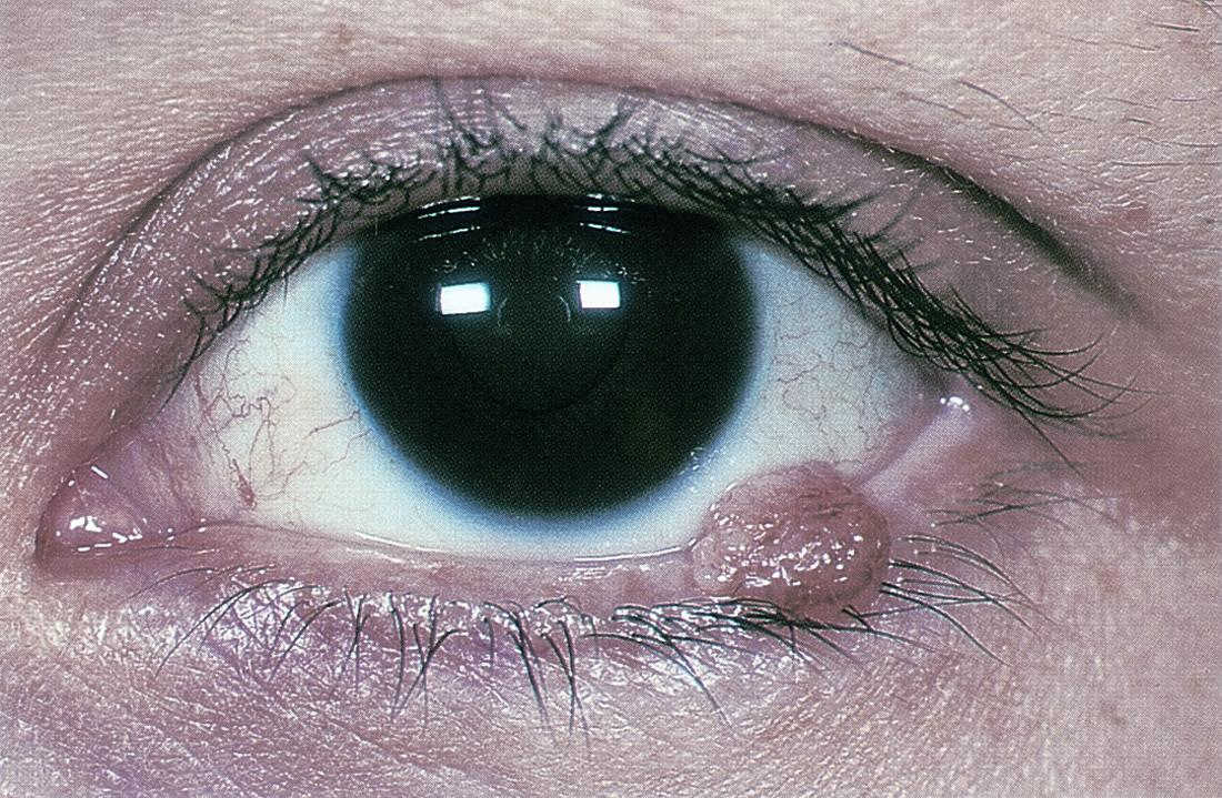 симптомы рака глаза