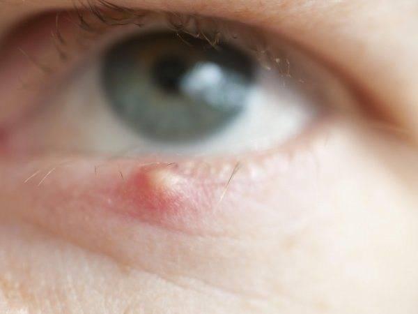 Можно ли греть ячмень на глазу: секреты быстрой борьбы с недугом