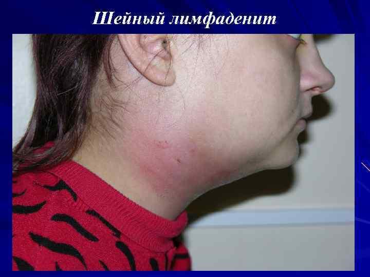 Лимфоузлы при ангине: причины их увеличения, симптомы и методы лечения