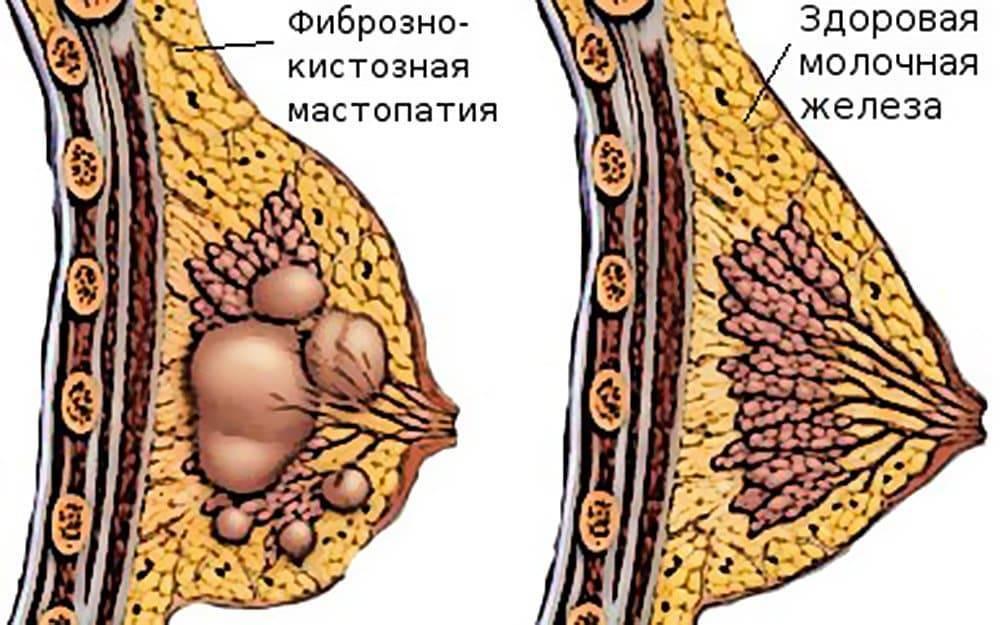 фиброзная мастопатия молочных желез лечение