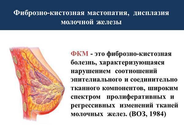 эхопризнаки фиброзно кистозной мастопатии