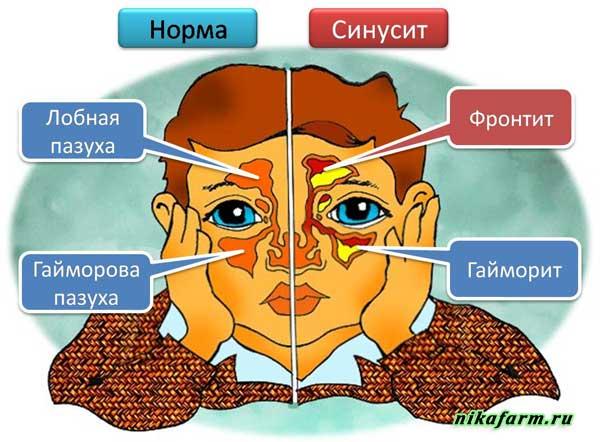 синусит или гайморит отличие