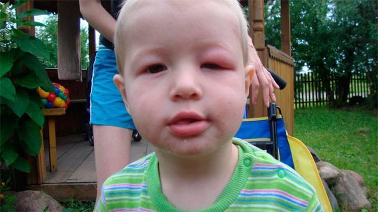 укус комара в глаз у ребенка