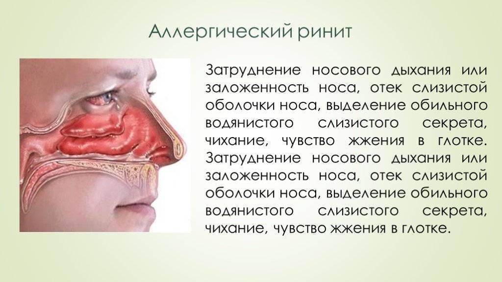 Отек слизистой носа при аллергии: причины и что делать