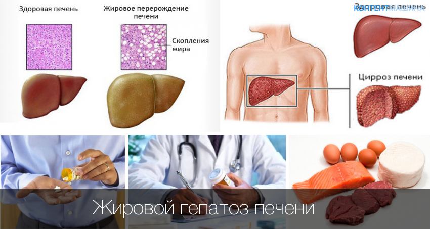 Гепатоз печени - симптомы и лечение, в том числе жирового гепатоза печени