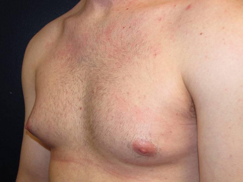 Гинекомастия у женщин: что это такое, симптомы