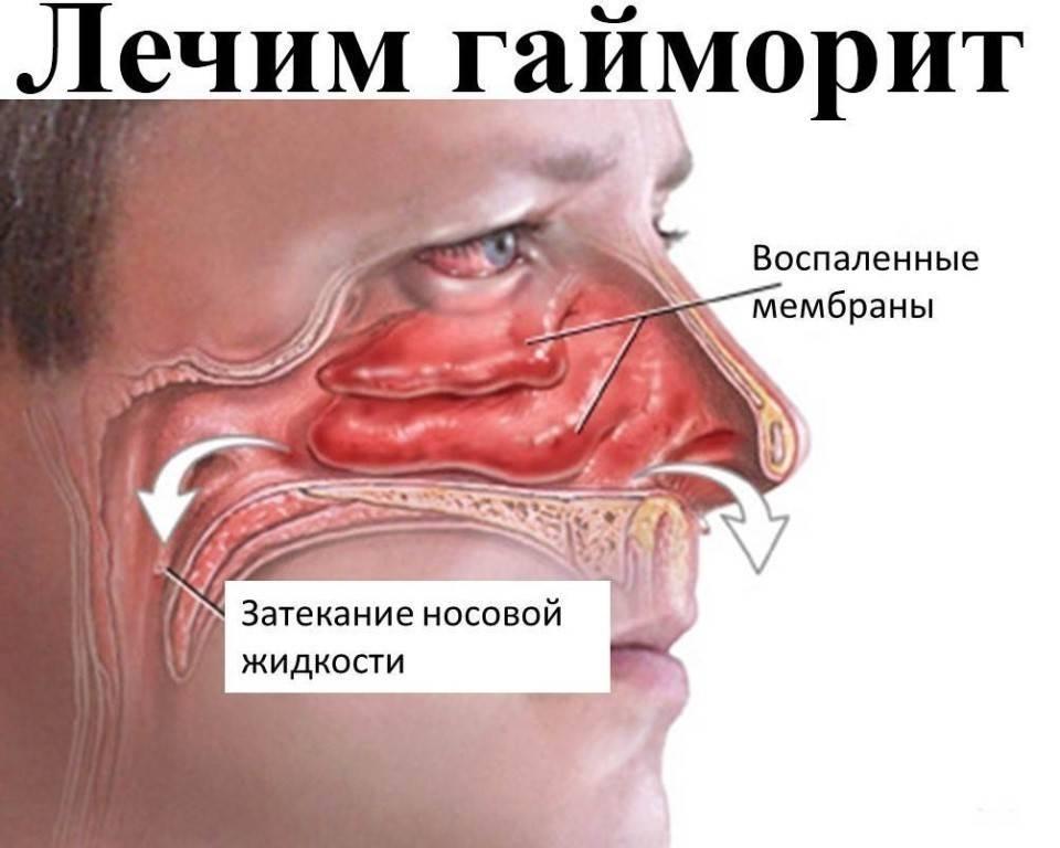 Причины заложенности носа у взрослого
