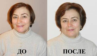 Выпадают сильно волосы после удаления щитовидной железы