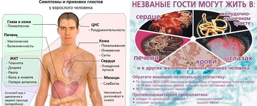 Глисты у человека: причины, симптомы, диагностика