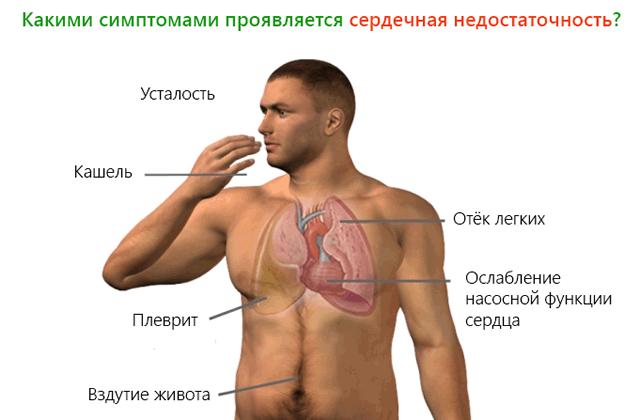 Симптомы сердечного кашля у женщин — симптомы