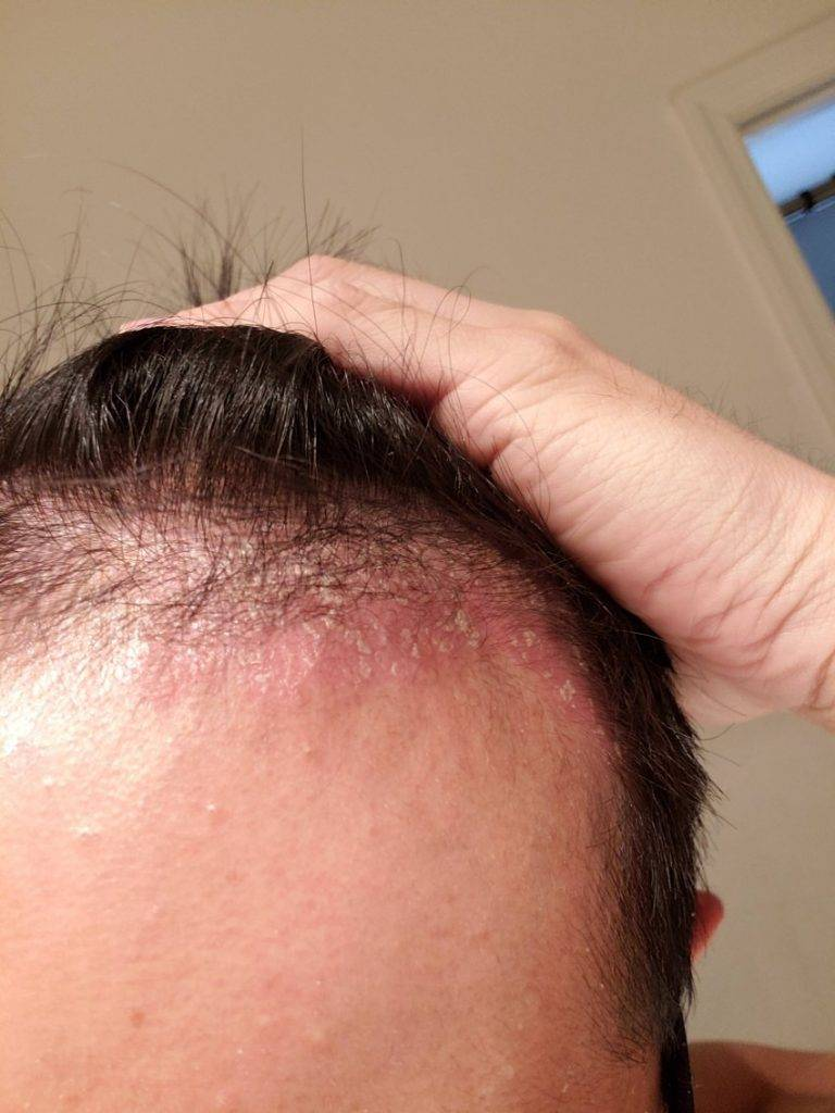 дерматит головы