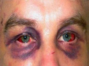Что сделать, если болят глаза от сварки?