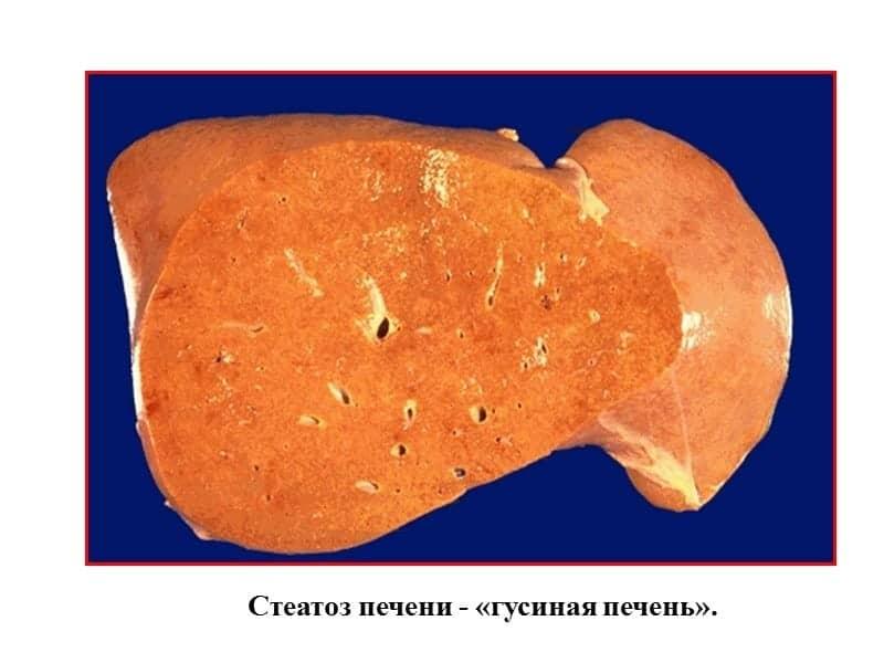 Стеатоз печени: что это такое, симптомы и лечение препаратами, народными средствами