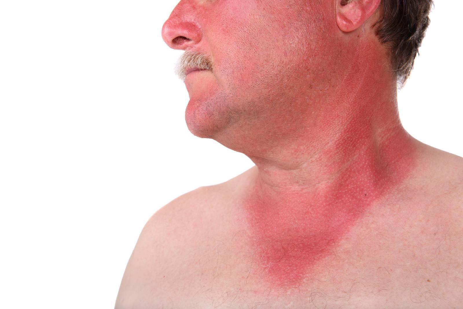 Ожог горла: причины и симптомы, чем лечить в домашних условиях