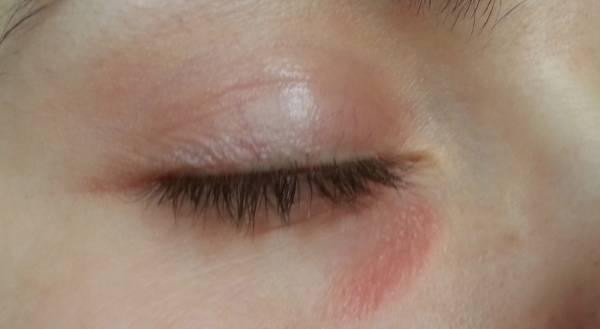 у ребенка под глазом красное пятно шелушится