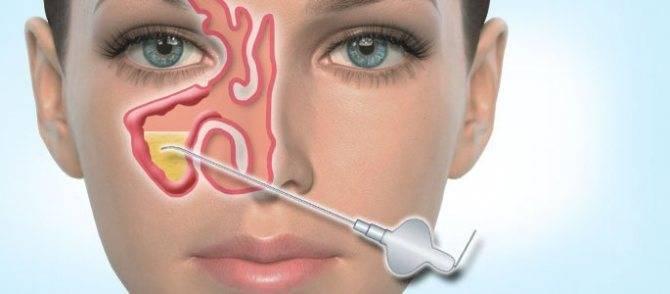 Гайморит: признаки, симптомы, лечение
