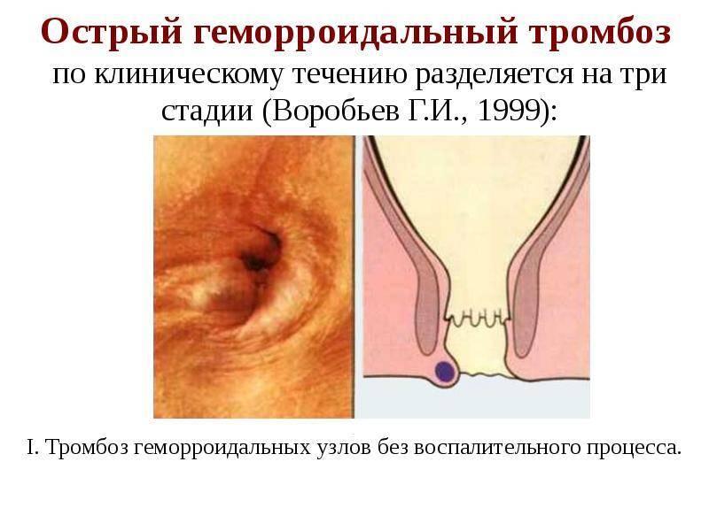 Что нужно делать для лечения воспаления геморроидальных узлов