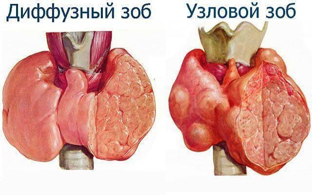 узловой зоб щитовидной железы лечение