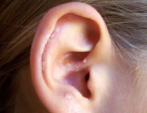 Псориаз в ушах: причины и лечение