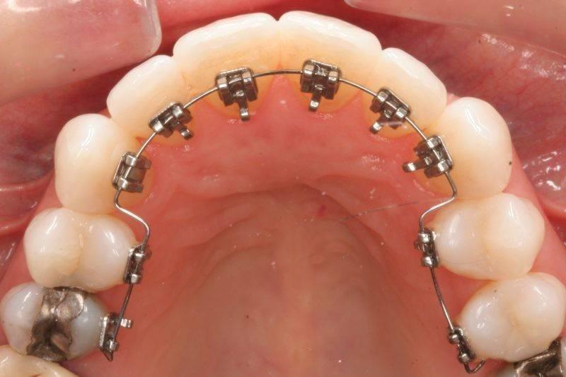 Лингвальнаябрекет-система 2d — плоские зубные брекеты forestadent