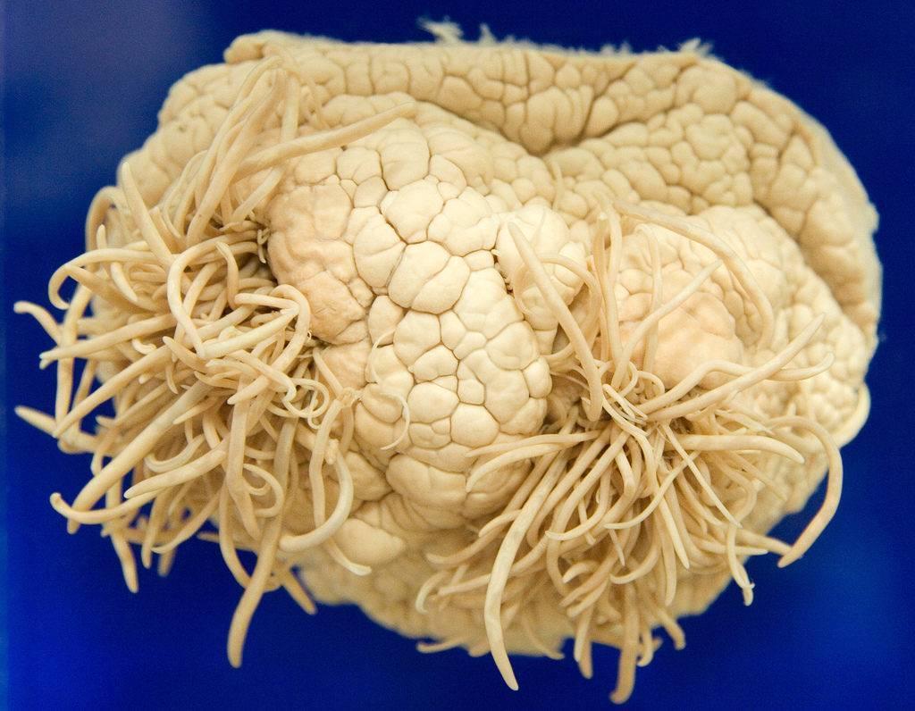 Могут ли быть паразиты в головном мозге человека?