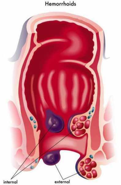 Геморроидальный тромбоз код мкб 10